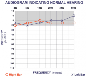 Audiogram showing normal hearing